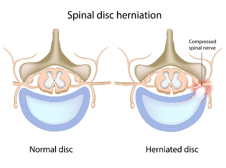 Smyrna chiropractor provides spinal decompression for herniated discs